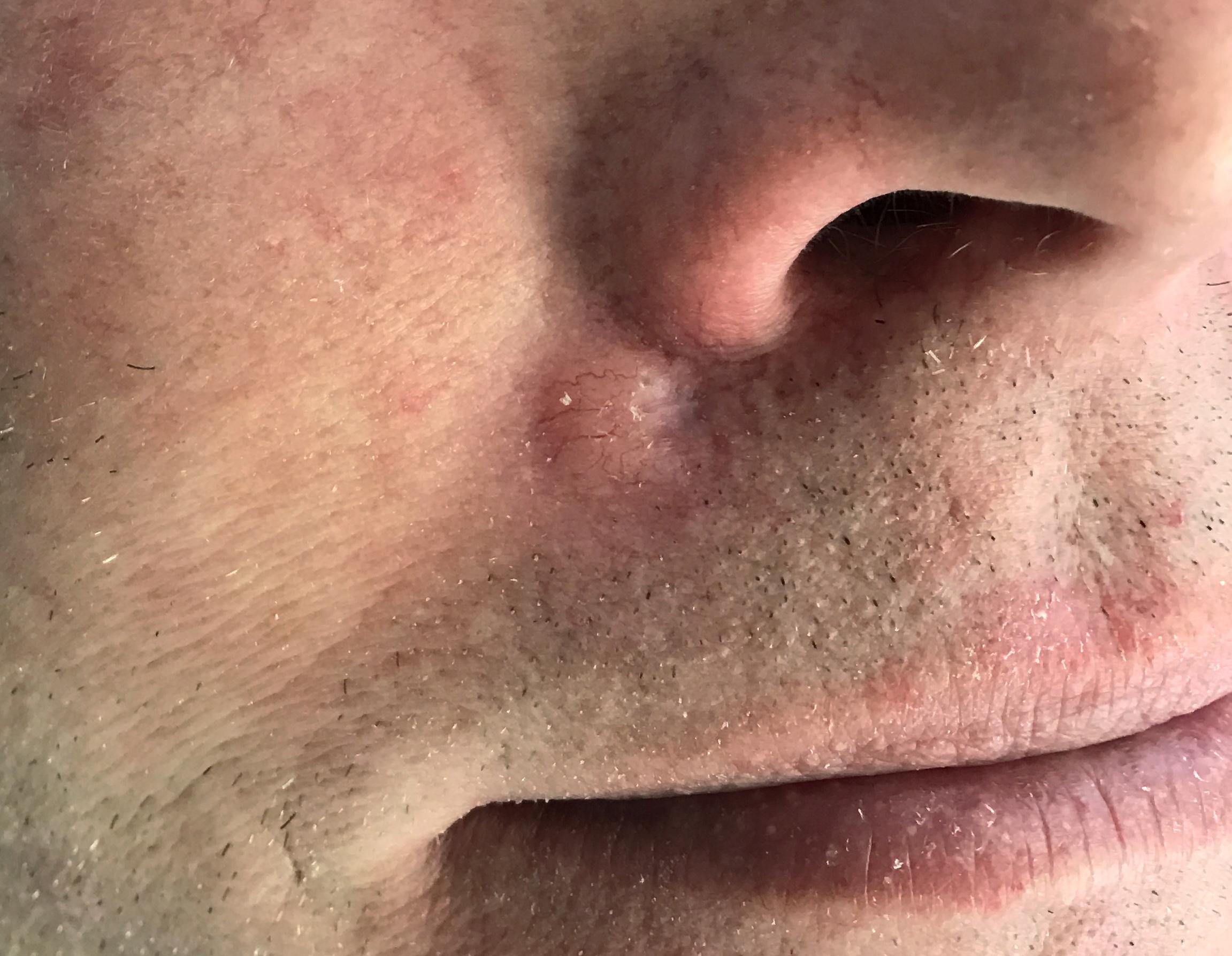 sår i näsa