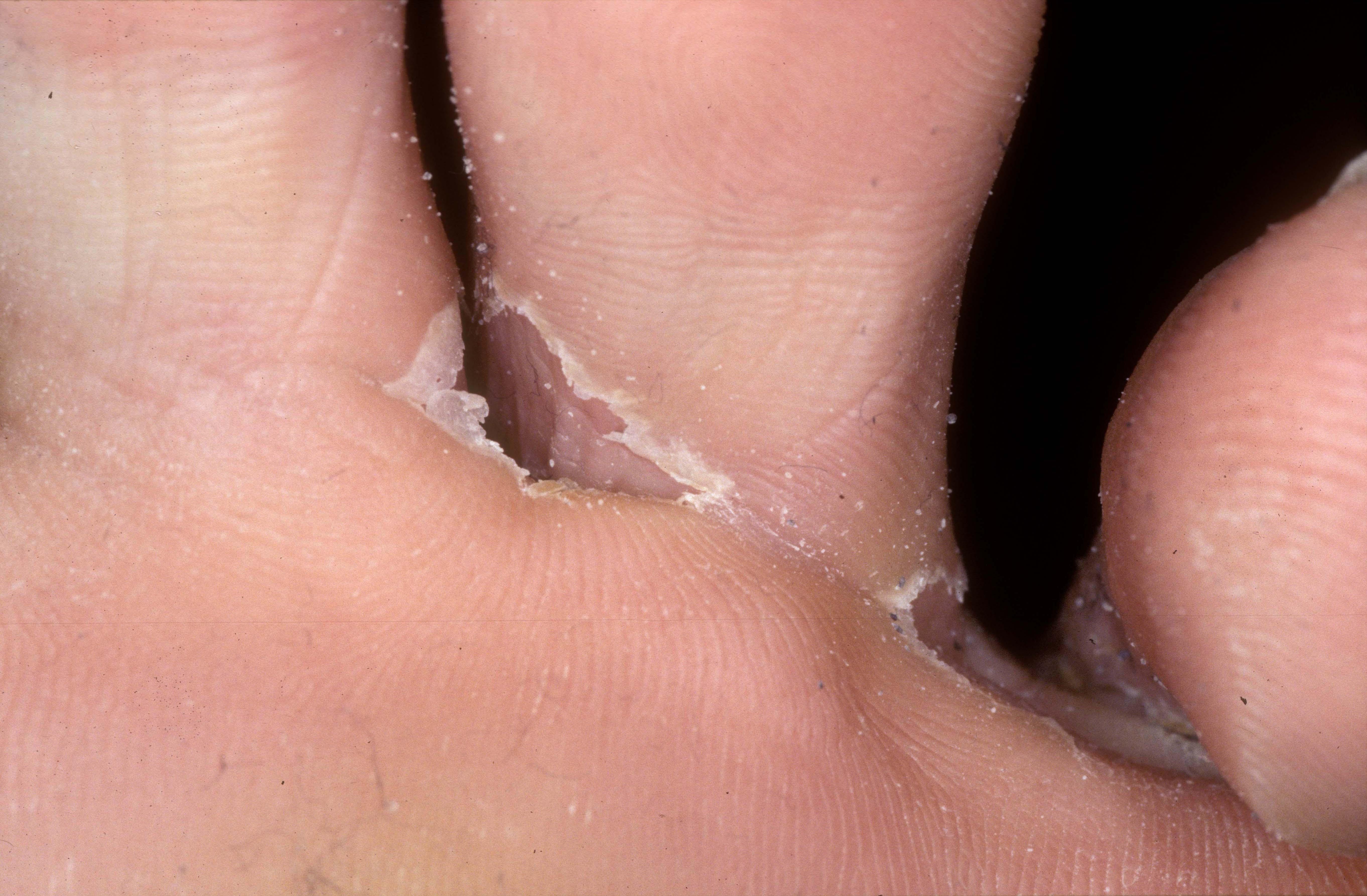 döda fotsvamp i skor