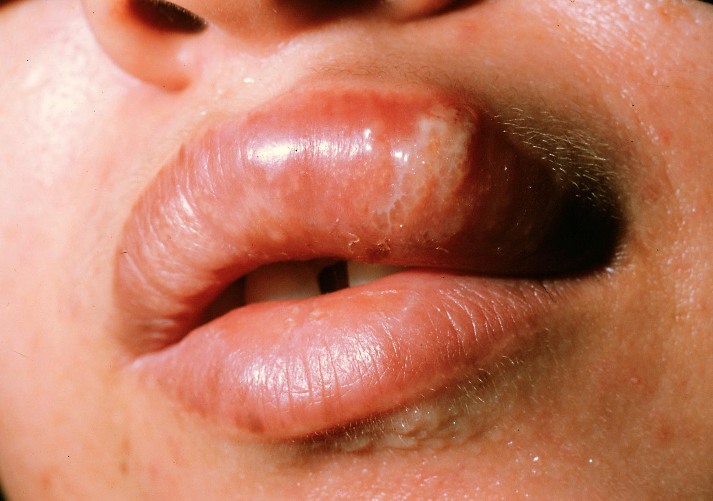 Blåsor på tungan