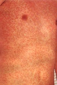 hur ser hiv utslag ut
