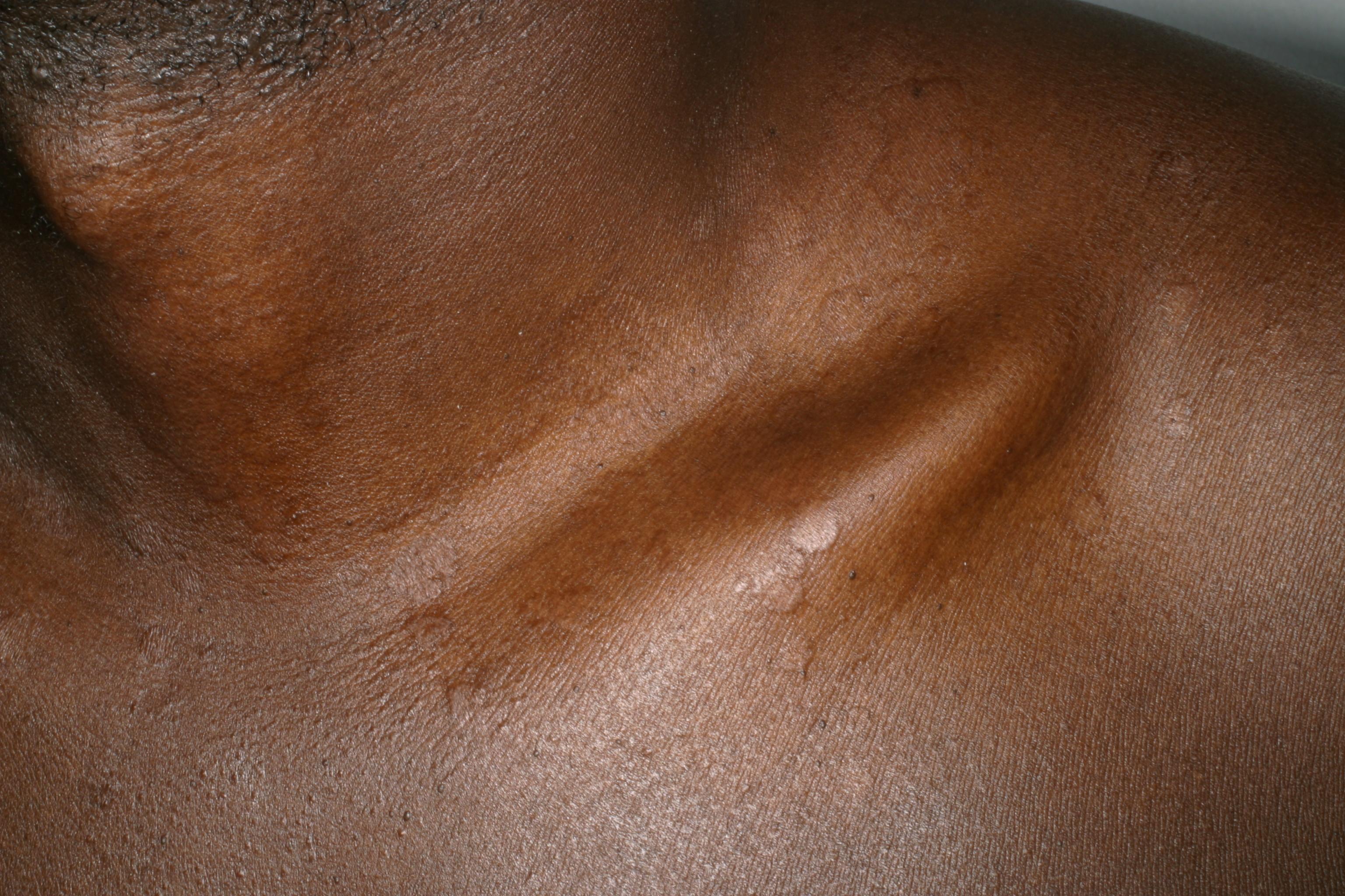 vita prickar på ryggen