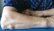 reumatism symtom händer
