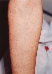 rött utslag på armen
