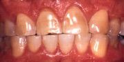 Tänder som har frätskador.