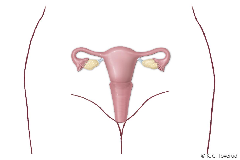 operera underlivet efter förlossning